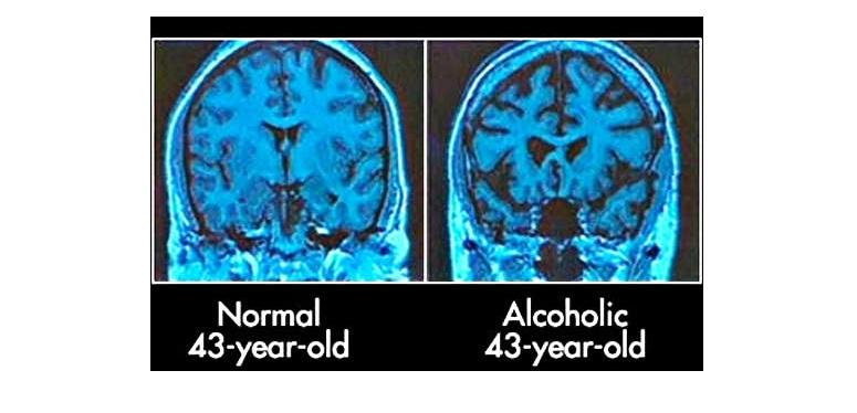 15 - Cerveau - Alcool - 43 ans